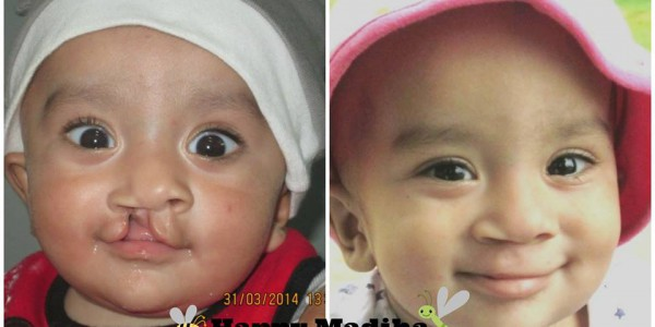 decent_welfare_scoiety_project-cleft_lip_palate